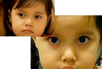 Estrabismo divergente en los niños