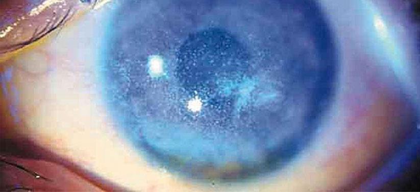 La radiación solar perjudica la salud ocular