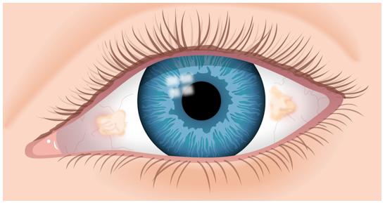 Lesión ocular benigna, elevada y amarillenta