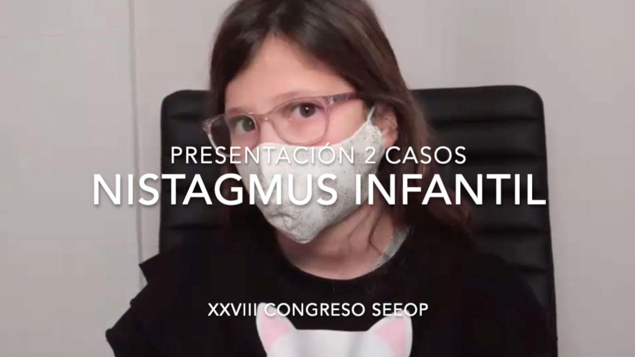 Presentación 2 Casos De Nistagmus Infantil